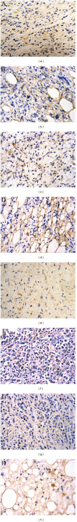 Immunohistochemical staining of Eag1 in different liposarcoma samples. Examples of high expression levels of Eag1 in myxoid liposarcoma (a), pleomorphic liposarcoma (b), round cell liposarcoma (c), and well differentiated liposarcoma (d). Low expression levels of Eag1 are shown in myxoid liposarcoma (e), pleomorphic liposarcoma (f), round cell liposarcoma (g), and well differentiated liposarcoma (h). Magnification: 40x.