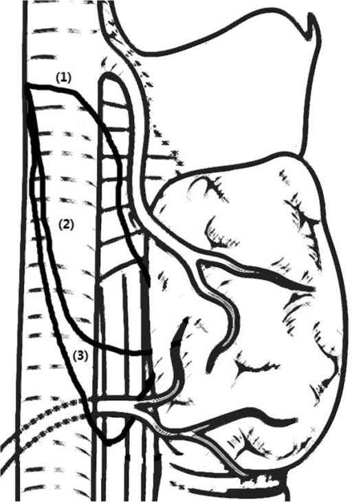 Three types of nonrecurrent laryngeal nerve (NRLN) as described in the literature and based primarily on the course the nerve travels.