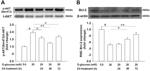 Modulation of p-AKT (Ser473) activation and Bcl-2 expression in primary retinal Müller cells (RMCs) by E4 under high glucose culture. E4 stimulation downregulated p-AKT (Ser473) activation (A) and upregulated Bcl-2 expression (B) in primary retinal Müller cells (RMCs) under high glucose culture at different time points (24 h, 48 h, and 72 h; one-way ANOVA followed by Bonferroni's test: p-AKT [Ser473], control [D-glucose, 5.6 mM] versus control [D-glucose, 20 mM], t=10.07, p<0.001; control [D-glucose, 20 mM] versus E4 treatment [20 mM D-glucose + 24 h E4 treatment], t=3.391, p=0.040; control [D-glucose, 20 mM] versus E4 treatment [20 mM D-glucose + 48 h E4 treatment], t=5.191, p=0.001; control [D-glucose, 20 mM] versus E4 treatment [20 mM D-glucose + 72 h E4 treatment], t=3.315, p=0.047; Bcl-2, control [D-glucose, 5.6 mM] versus control [D-glucose, 20 mM], t=10.76, p<0.001; control [D-glucose, 20 mM] versus E4 treatment [20 mM D-glucose + 48 h E4 treatment], t=3.876, p=0.015; control [D-glucose, 20 mM] versus E4 treatment [20 mM D-glucose + 72 h E4 treatment], t=5.213, p=0.001; n=4). *: p<0.05, **: p<0.01, #: p<0.001. E4: Exendin-4. Data are expressed as the means ± SEM. One-way ANOVA followed by Bonferroni's test.
