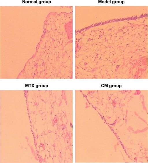 Histopathological changes in H&E-stained synovial sections in the AIA rats (×200).Abbreviations: AIA, adjuvant-induced arthritis; CM, curcumin; H&E, hematoxylin and eosin; MTX, methotrexate.