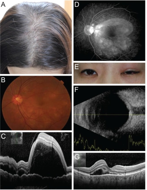 (A) Alopecia developed several months before ophthalmic symptoms. (B) Initial fundus photography of the left eye, diffuse serous retinal detachment was observed. (C) Initial optical coherence tomographs showed subretinal fluid with serous retinal detachment, involing macula. (D) Initial fluorescein angiography showed some leak points and pooling into the subretinal space. (E) Recurred state, there was upper lid erythema, swelling and ptosis. (F) Recurred state, the ultrasonographs showed the increased thickness of the posterior scleral wall and the typical T sign caused by the spread of inflammation along the Tenon's space into the optic nerve sheath. (G) Recurred state, the serous retnal detachment was relapsed in optical coherence tomographs. But it was less severe than initial state.