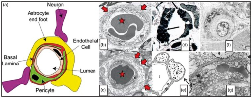 Panel (a) illustrates the organization of endothelial cells, basement membrane and pericytes in the vessel wall. Capillaries are ensheathed by astrocytic endfeet, and neuronal terminals are closely apposed to capillaries and pericytes.66 Source: Reproduced from Hamilton et al.66 according to the Creative Commons terms. Panel (b) shows a cross section of normal capillary with a thin basement membrane (arrow) and normal appearing endothelial cell (e). In ageing (Panel (c)), thickened basement membranes (arrows), pericapillary fibrosis and pericyte loss are often found. Source: Panels (b) and (c) are reproduced from Farkas et al.188 Panel (d) shows a capillary cross section from the skin of a patient with Fabry's disease. Note the lamellar sphingolipid inclusions in the capillary endothelium (arrow). These inclusions disappear upon enzyme replacement therapy. Source: Reproduced from Eng et al.189 Panel (e) shows typical cerebral capillary wall pathology in human AD. The arrow indicates pericyte degeneration. The symbols denote lumen (l), endothelial cell (e), basement membrane (*) and pericyte (p). Source: Reproduced from Farkas et al.190 Panel (f) shows a cross section of a muscle capillary from a patient with MELAS. Note the thickened basement membrane and increased number and size of mitochondria in the pericyte. Source: Reproduced from Sakuta and Nonaka.191 Panel (g) shows a cross section of a cerebral capillary from the motor cortex of a MELAS patient with accumulation of mitochondria in the endothelial cell. Source: Reproduced from Ohama et al.192 with permission from the publisher. AD: Alzheimer's disease; MELAS: mitochondrial encephalopathy with lactic acidosis and stroke-like episodes.