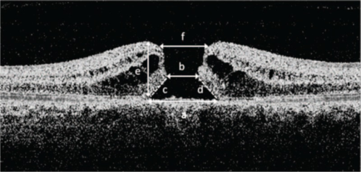Optical coherence tomography scan measurements in macular hole: (a) base diameter, (b) minimum linear dimension, (c) and (d) arms for measuring hole form factor, (e) hole height, (f) macular hole inner opening. Hole form factor. (c ± d)/a = macular hole index, e/a = tractional hole index e/b.20.