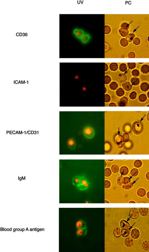 The binding of fluorescence-labeled soluble receptors to the surface of erythrocytes infected with FCR3S1.2. Fluorescence-labeled recombinant human CD36, ICAM-1, or PECAM-1/CD31 was directly incubated with the infected cells. The binding of human nonimmune IgM was detected by incubating the pRBCs with FITC-labeled rabbit anti–human Ig, whereas that of the blood group antigen A was by incubating the infected cells with an A trisaccharide coupled to biotinylated BSA and FITC-avidin. Infected (arrows) and uninfected RBCs are shown with phase–contrast (PC) and in parallel with UV light (UV). The binding shown was at a receptor concentration of 100 μg/ml, and the parasites were counterstained with ethidium bromide. The fluorescence rates were 65–70% (CD36), 0–5% (ICAM-1), 70–80% (PECAM-1/CD31), 75–85% (IgM), and 60–70% (blood group A). For further details, see Materials and Methods.