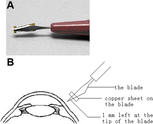 The method for preparation of a 1 mm-depth penetrating ocular injury at six o'clock of the murine limbus. A modified Standard Angle Blade is shown in the picture (A). A copper sheet was stuck 1 mm posterior to the blade tip. The diagram (B) showed that a 1 mm-depth penetrating ocular injury was made perpendicularly to the limbus using the modified standard Angle Blade.