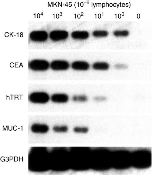 Sensitivities of RT–PCR and Southern blot assay of mRNA markers for gastric cancer. In 106 lymphocytes, one cell of the MKN-45 gastric cancer cell line could be detected by CK-18 and CEA, 10 cells could be detected by hTRT, and 100 cells could be detected by MUC-1.
