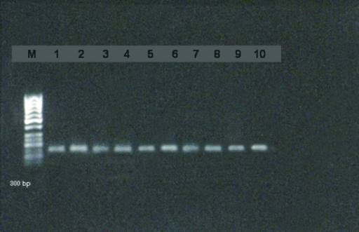 Detection of E. faecalis by PCR.M: Marker DNA (GeneRuler®DNA Ladder Mix (Fermantas))1–10: E.faecalis positive samples