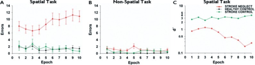 Performance over time on spatial and non-spatial tasks. (A) Errors over time epoch on spatial task (Error bars = SEM). Total time = ∼8 min. (B) Errors over time on non-spatial task (Error bars = SEM). Total time = ∼8 min. (C) Sensitivity of target detection (d′) across time on the spatial task. Neglect patients begin with lower target sensitivity than control patients, and this decreases substantially after the fourth epoch. Note log scale.