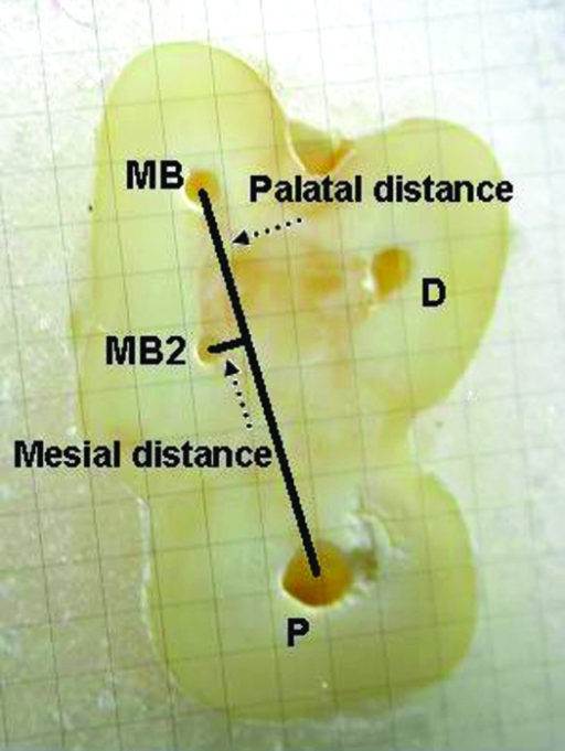 On the millimetric glass scale, measurements were made to characterize the geometrical location of MB2 canals. MB: mesiobuccal canal orifice, MB2: second mesiobuccal canal orifice, P: palatal canal orifice.