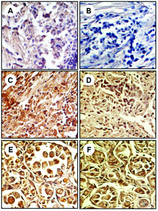 Expression of immunohistochemical markers, STAT3 (A, C, E) and p-STAT3 (B, D, F), in benign (A and B); intermediate (C and D); malignant (E and F) soft tissue tumors. The nuclei were counterstained with hematoxylin blue. Image magnifications are 400×.
