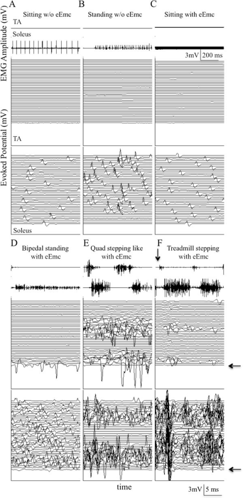 Representative EMG and evoked potentials with and without eEmc. Representative raw EMG and evoked potentials from the soleus and tibialis anterior (TA) muscles without eEmc from one spinal rat during (A) sitting, (B) attempted bipedal standing, and with eEmc (1.5 V, 40 Hz between L2 and S1) during (C) sitting, (D) bipedal standing, and (E) quadrupedal (Quad) stepping-like movement during the 6-hr recording period in its home cage. (F) Representative EMG and evoked potential from the soleus and TA from the same rat during body weight supported bipedal treadmill stepping facilitated by eEmc (2.0 V, 40 Hz between L2 and S1). The start of each trace with eEmc is synchronized with the initiation of the eEmc pulse. Each trace is 25 msec, i.e., the time between successive eEmc pulses. The arrow placed on the EMG signals denotes the time of the initial 25 msec scan.