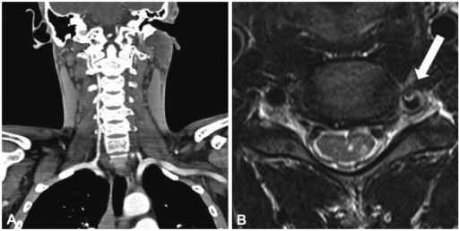 A: Severe stenosis and occlusion of the proximal part of the left vertebral artery in a neck CT angiogram. B: Axial T2-weighted image showing severe stenosis of the left vertebral artery due to dissection, showing a pseudo lumen with mural thrombi (arrow), and a high signal intensity in the left gray matter of spinal cord at the C4 level.