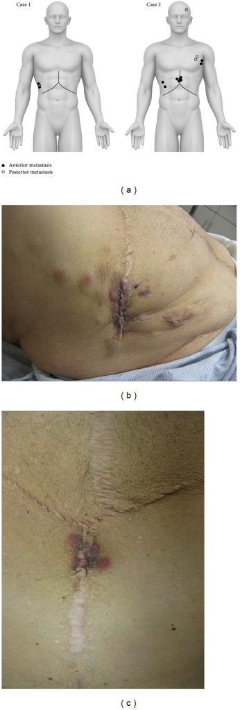 (a) Illustration demonstrating locations of cutaneous metastases for patients of Case  1 and Case  2. (b and c) Multiple erythematous-violaceous metastatic lesions with irregular borders representing mixed HCC/cholangiocarcinoma found at the previous incision site of the patient in Case  2.
