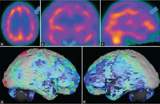 "A 69-year-old male patient with memory loss, depression, insomnia, apathy, poor judgment is showing the brain perfusion pattern of a frontotemporal dementia in 99mTc-hexamethyl propyleneamine oxime brain perfusion single photon emission computed tomography (SPECT) study. (a) Transaxial,b) coronal,c) sagittal view of SPECT images and (d) right lateral,e) left lateral surface projection views of ""Neurogam"" processed images, are showing bilateral frontotemporal hypoperfusion"