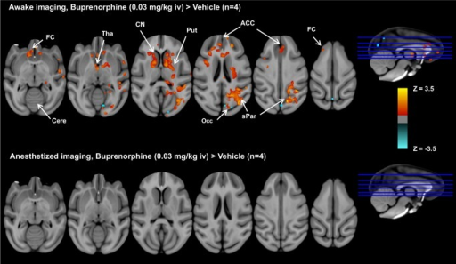 Group comparisons of brain activation patterns between buprenorphine and vehicle under awake and anesthetized imaging.Group comparisons of brain activation patterns showing significant effect of buprenorphine versus vehicle (paired t-test, p<0.05, n = 4) under awake and anesthetized imaging. In the awake study, buprenorphine activates brain regions with a high density of µ-opioid receptor, including frontal cortex (FC), thalamus (Tha), anterior cingulate cortices (ACC), caudate nucleus (CN), putamen (Put), and superior parietal lobule (sPar), and limited deactivation was found in occipital cortex (Occ). In contrast, no significant difference in brain activation between buprenorphine and vehicle infusion was observed in anesthetized animals.