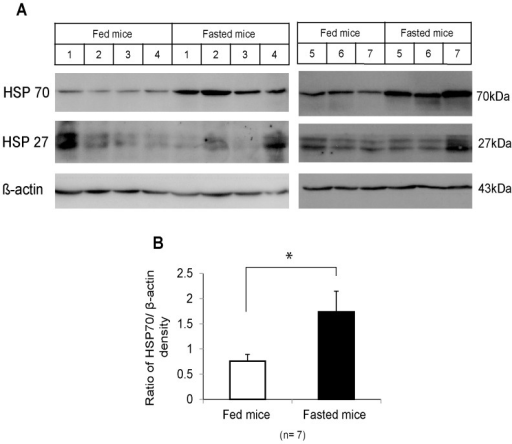 Western blot analysis of heat shock protein expression in fasted mouse livers.(A) Heat shock protein (HSP)70, HSP27, and β-actin expression in the livers from fed mice (control) and 3-day-fasted mice (7 mice in each group) was determined by western blot. (B) The bar graph shows the average HSP70/β-actin densities plus standard error of the mean; densities were analyzed using ImageJ software. Statistical analyses were performed using the independent samples T test. *p <0.05.