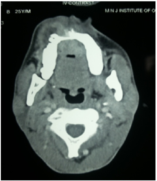 Axial CT scan showing ill-defined enhancing soft tissue mass on anterior hard palate extending posteriorly up to the soft palate on right side.