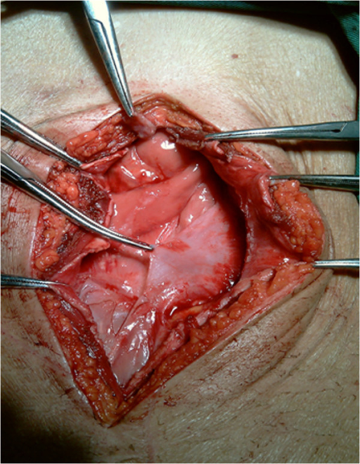 Intraoperative photograph of a patient with SEP (membrane encapsulates the entire intestine).