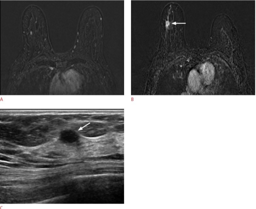 A 57-year-old woman with cancer in her left breast.A. A dynamic contrast-enhanced and subtracted T1-weighted axial image shows a small enhancing mass in her right breast. There were no correlated lesions seen on second-look ultrasonography (US). B. On follow-up magnetic resonance imaging performed 30 months later, a 1.5-cm irregular, enhancing mass (arrow) is detected at the same location in her right breast. C. US shows an oval hypoechoic mass (arrow) with an indistinct margin and confirmed it as invasiveductal carcinoma.