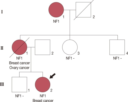Pedigree of the family showing the index case (black arrow). The proband (III:2) was diagnosed with invasive breast carcinoma at 21 years of age and neurofibromatosis type 1 (NF1) at birth. Her mother (II:1) was affected with bilateral breast carcinoma, ovarian carcinoma and NF1. Although her grandmother (I:1) was affected by NF1, she did not have a history of carcinoma. Other familial members were not affected by cancer or NF1.