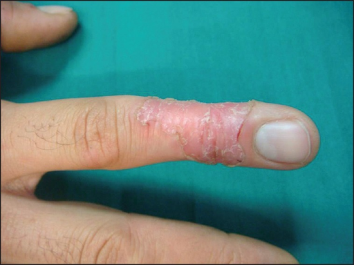 PM (before treatment); raised annular hyperkeratotic border on the digit
