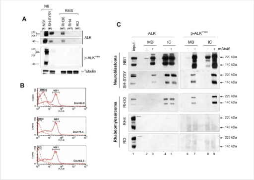 Endogenous ALK expression levels influence receptor intrinsic kinase activity in RMS cells.(A) ALK protein expression (upper panels) and phosphorylation (lower panel) in RMS (RH30, RH4, RD) and neuroblastoma (NB1, SH-SY5Y) cell lines. Western blot analysis of cell extracts using the specified polyclonal anti-ALK (ALK) and anti-phospho ALK (ALKY1604) antibodies. Full-length (220 kDa) and cleaved ALK form (140 kDa) are shown. ALK gene status is also indicated (A = amplified; M = mutated; WT = wild-type) (B) Cell surface detection and quantitative assessment of ALK receptor. Membrane-bound ALK kinase in non-permeabilized RMS and neuroblastoma cells using a primary monoclonal antibody against the N-terminal portion of ALK. Fluorescent-conjugated secondary antibody was used to acquire ALK signal with FACS-Calibur Cell Cytometer. ALK-amplified NB1 cells were included in the analysis as positive control for ALK expression and localization at the plasma membrane. (C) mAb46 effect on ALK receptor activation. RMS (RH30, RH4 and RD) and neuroblastoma (NB1, SHSY-5Y) cells were treated (+) or left untreated (-) with 1 μg/ml agonist mAb46 for 30 min. Membrane-bound (MB) and intracellular (IC) ALK was immunoprecipitated as described in material and methods and detected using polyclonal anti-ALK (ALK) and anti-phospho ALK (ALKY1604) antibodies. Full-length (220 kDa) and cleaved (140 kDa) ALK proteins position is indicated by arrowheads. NB1 cell extracts were used as positive control for ALK expression in RH4 and RD immunoblots.
