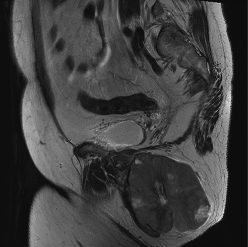 Magnetic resonance imaging scan demonstrating a hypervascular, well circumscribed 9.8×8.1×8.8 cm ischioanal fossa tumor with considerable mass effect on adjacent structures but without invasion.