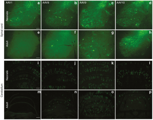 GFP expressed by AAV1, AAV8, AAV9, or AAV10 after i.v. vector administration to either neonates or adults. The GFP expression in the CNS appeared to be neuronal with any of the serotypes tested at either age. The different serotypes are shown in the different columns, and the spinal cord and cerebellum are shown at each age. The serotypes performed similarly for GFP expression in the neonates, but in adults, AAV9 appeared to result in the strongest GFP expression. Quantifications of the GFP expression are in Figure 6. Bar in a = 134 μm. Same magnification in b–h. Bar in i = 268 μm. Same magnification in j–l. Bar in m = 536 μm. Same magnification in n–p. CNS, central nervous system; GFP, green fluorescent protein; i.v., intravenous.