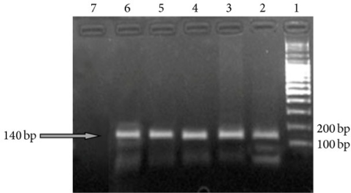 Electrophoresis profile of Mg DNA obtained from 5 samples by PCR (140 bp) on 2% Agarose Gel. Lane 1: DNA Ladder weight marker; Lane 2: isolate A; Lane 3: isolate B; Lane 4: isolate C; Lane 5: isolate D, Lane 6: positive control; Lane 7: negative control.