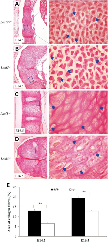 Collagen defect in the cartilage primordia of the thoracic vertebrae of Loxl3−/− fetuses (Sirius red staining). (A and B) In LOXL3 knockout mice at E14.5, chondrocytes in the cartilage primordia were loosely organized because of a reduction in the collagen fibres around the chondrocytes. (C and D) Collagen fibres around the columnar chondrocytes in LOXL3 knockout mice were still sparse at E16.5. (E) Whether at E14.5 or at E16.5, the collagen fibre density around the chondrocytes in Loxl3−/− mice was significantly less than that in Loxl3+/+ mice. **P < 0.01. Blue arrows: collagen fibres. Left bar: 100 μm. Right bar: 10 μm.