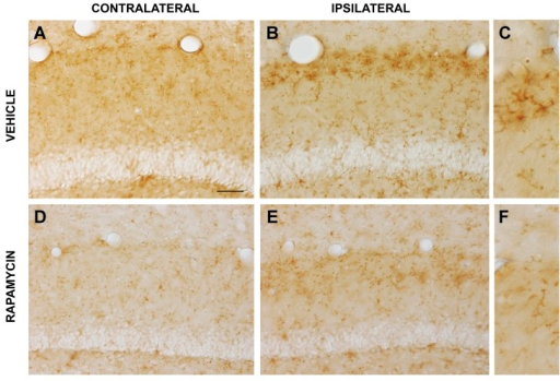 Rapamycin inhibits pathological tau-activated innate immunity in the lateral perforant pathway synaptic field.Microglial-mediated innate immunity in response to pathological tau-induced neurodegeneration was evaluated by immunohistochemical labeling for mouse IgG. (A) Cells with modest IgG expression were dispersed throughout the hippocampal dentate gyrus contralateral to viral vector delivery. (B) At 3 weeks after expressing pathological human tau in the lateral perforant pathway in mice treated with vehicle, a dense band of microglia with increased IgG expression was observed in the dentate gyrus outer molecular layer. (C) The morphology of IgG-expressing cells confirmed their identification as microglia. Whereas chronic rapamycin treatment modestly reduced microglial IgG expression in the contralateral hemisphere (D), it markedly attenuated the reactive microgliosis-associated increase in IgG expression in the lateral perforant pathway synaptic field (E, low magnification; F, high magnification). Essentially identical findings were made in the infrapyramidal blade of the dentate gyrus. Scale bar = 20 μm (A,B,D,E), 10 μm (C,F).