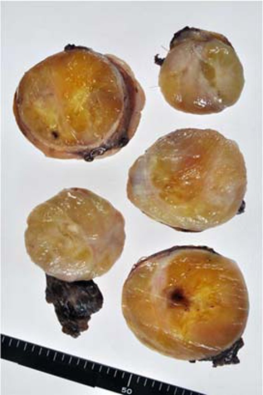 Gross appearance of the tumor. The well-circumscribed mass is encapsulated by fibrous tissue, showing a myxoid appearance intermingled with a whitish, solid part on the cut surface.
