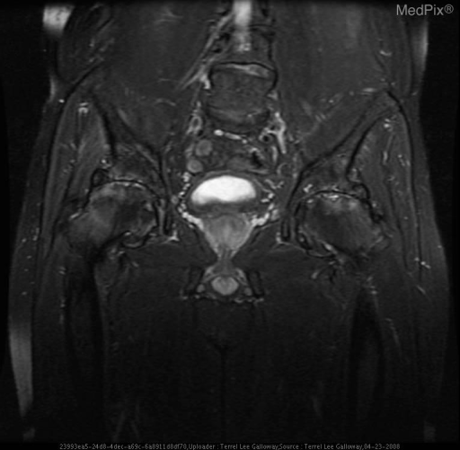 Coronal T2 MRI with fat saturation