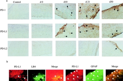Expression of PD-1, PD-L1, and PD-L2 in the CNS of mice with EAE. (a) Time course of expression of PD-1, PD-L1, and PD-L2. Immunohistochemistry for PD-1, PD-L1, and PD-L2 expression in spinal cord sections from animals with EAE at different time points after immunization for up to 1 mo. The numbers above each plate represent the time after immunization when the animals were killed and the sections were stained. There is a progressive increase in the PD-1 and PD-L1 expression, which appears to peak by day 21 and begin to decline thereafter, mirroring the clinical tempo of disease (×100), whereas there is no PD-L2 staining until day 30 when it appears minimally. (b) Expression of PD-L1 on resident brain cells during EAE. Confocal immunohistochemistry demonstrating expression of PD-L1 on astrocytes (costained with GFAP on day 20 of EAE) and microglia (costained with lectin IB4 on day 30 of EAE; all ×40). No expression of PD-L2 was found on resident brain cells.