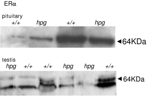Western blot analysis of ERα immunoreactivity. Examples of a Western blot analysis of extracts of pituitary gland (top) and testis (bottom) from hypogonadal (hpg) and age-matched wild-type (+/+) mice. Membranes were stained with MC-20 ERα antiserum (Santa Cruz).