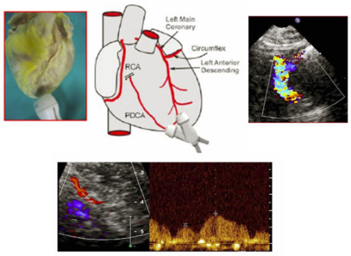 represents an artist's drawing illustrating transducer beam orientations to the left anterior descending coronary artery (LAD) and to posterior descending coronary arteries with the corresponding echocardiographic images of the mid-distal tract of LAD Pulse-wave flow and posterior descending coronary artery (PDCA).