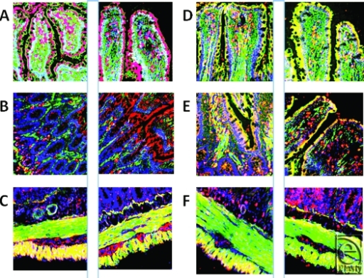 This figure demonstrates the specificities with regard to both concentration changes and localizations of various antimicrobials in the ileum. Each pair of images (panels A through F) shows the sham tissue on the left and the ischemia-reperfusion image on the right. The first 2 panels (A) are images used to produce Figure 1. More rat beta defensin (RBD)-1 is seen in the apical and middle regions of the villi. Panel B again shows RBD-1 (red), but this time in the base/neck region of the villi. Panel C shows RBD-3 before and after ischemia-reperfusion demonstrating a decrease in peptide in the outer, longitudinal muscularis externa and a small increase in the inner, circular layer. Panel D shows RBD-2 increase in enterocytes due to I/R and a decrease in perilacteal concentration. Panel E shows RNP-1 throughout the epithelial layer of both sham and ischemia-reperfusion samples; panel F clearly demonstrates a reduction of cathelicidin in the outer, longitudinal muscularis externa, but an increase in the lower, glandular aspects of the mucosa (magnification X 400).