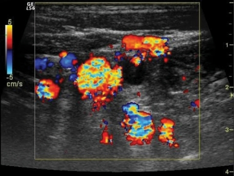 Transverse color Doppler image demonstrates prominent cervical venous collateralisation.