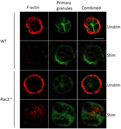 Microscopic analysis of granules and F-actin. Cytospins of BMNs freshly prepared from wild-type and Rac2-/- mice showing F-actin structures stained with phalloidin (red) and primary granules stained with CD63 (green). Cortical actin staining is more intense in unstimulated Rac2-/- cells compared to wild-type cells (unstim). The F-actin ring structure is dispersed in both cells following 15 min of CB/fMLF stimulation (stim). 60x/1.4 numerical aperture objective; bar = 5 μm.