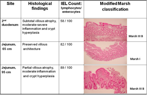 Histological findings on a normal diet. Histological confirmation of celiac disease by push enteroscopy.