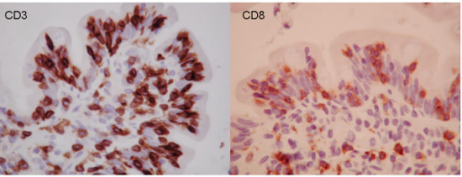Immunohistochemical phenotyping of IELs (at 95 cm in jejunum) at time of diagnosis. Intraepithelial lymphocytosis (IEL), 89 lymphocytes/100 enterocytes with double positivity for CD3 (LEFT) and CD8 (RIGHT), and negative for CD4; consistent with Marsh III A classification.
