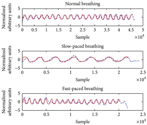 Demonstration of the ADR signal (dashed line) which is following well the reference signal in different breathing patterns.