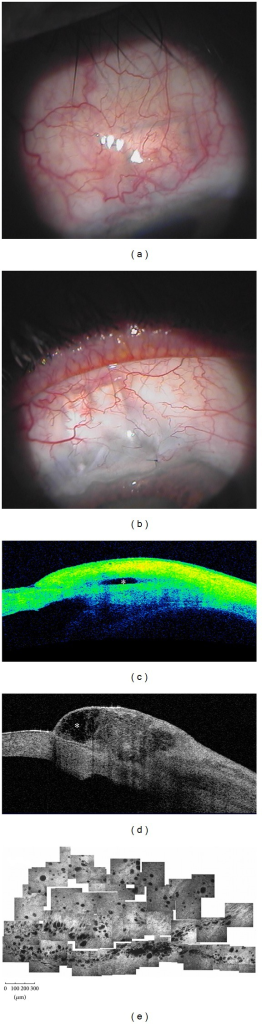Functioning filtering blebs. Functioning blebs, after MMC-augmented trabeculectomy, present a diffuse (a) or a cystic shape (b) at clinical evaluation. At AS-OCT (Visante OCT) these blebs show a patent and low reflective inner cavity (asterisks) (c and d), multilobed in the cystic shape, and a thick and low reflective bleb wall. In vivo laser scanning confocal microscopy (e) shows numerous intraepithelial microcysts in a glaucomatous patient after successful MMC-augmented trabeculectomy (planar reconstruction of the superior bulbar conjunctiva 6 weeks after surgery). (e: from Ciancaglini et al., [15] with permission from the publisher).