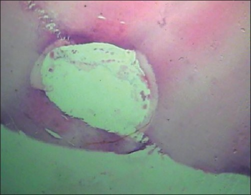 Histologic picture of the slide at 1 mm from the working length in the Max-i-Probe group