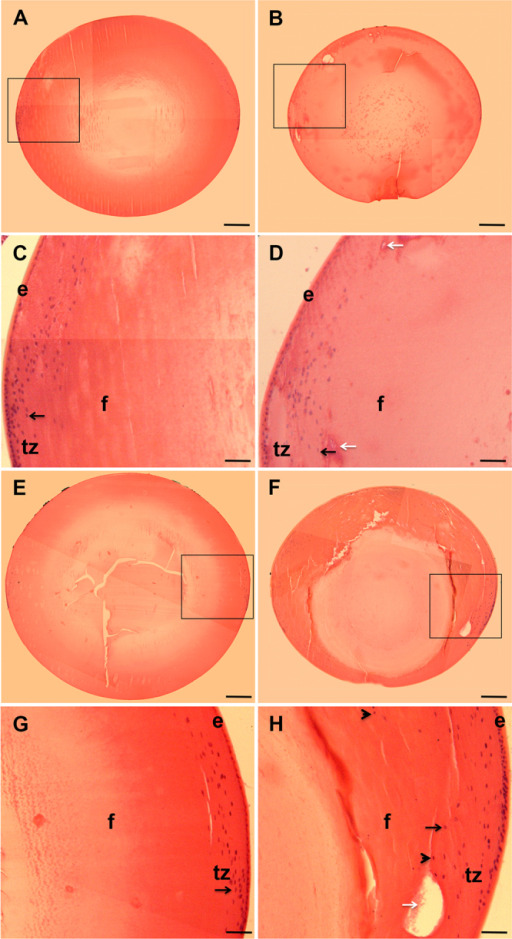 The absence of Dp71 is associated with histological alterations of the crystalline lens. Cross-sections of crystalline lenses from wt and KO-Dp71 mice eyes were stained with hematoxylin and eosin at 2 (A-D) and 7 (E-H) months of age. No major alterations in the histology of the crystalline lenses were observed with aging in wt mice (A and E); alternatively, a progressive disorganization was obvious in lenses from KO-Dp71 mice (B and F). Higher magnification images suggest alterations in the ultrastructure of the lenses in KO-Dp71 mice (D and H, white arrows) along with a disorganized transition zone at both 2 and 7 months of age (C versus D and G versus H, respectively; black arrows; e: epithelial cells; f: fiber cells; tz: transition zone). Scale bars A, B, E, and F: 300 μm; Scale bars C, D, G, and H: 80 μm.