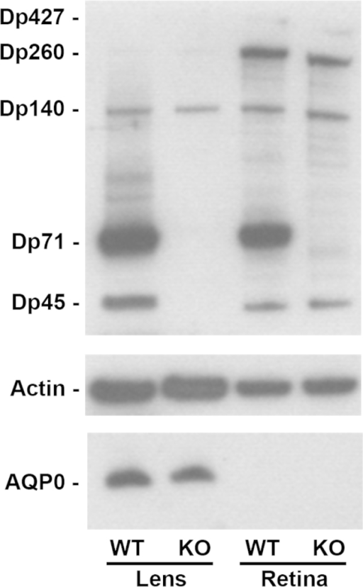 Dp71 is the major dystrophin isoform expressed in the crystalline lens. Levels of the expression of DMD gene products and AQP0 in lenses and retinas from wt and KO-Dp71 mice were analyzed by immunoblotting. Actin levels were used as a loading control. As in the retina, Dp71 is the main DMD gene product expressed in the lens. We also detected Dp427, Dp260, and Dp140 in the retinas, as well as Dp260 and Dp140 in the lenses from both strains.