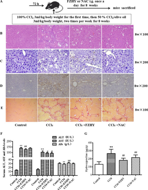 Fuzheng Huayu recipe (FZHY) and N-acetylcysteine (NAC) improves hepatic fibrosis. Mice were respectively treated orally with FZHY (4.0 g/kg) or NAC (0.1 g/kg) daily for 3 d before CCl4 treatment. Then, mice were injected at 8 weeks of age with 100% CCl4 3 ml/kg body weight for the first time, then 50% CCl4 /olive oil 3 ml/kg body weight, two times per week for 8 weeks to develop hepatic fibrosis (A). Liver sections were subjected to either hematoxylin-eosin staining to detect inflammatory cell infiltration and necrosis (B, × 100) or to the terminal deoxynucleotidyl transferase-mediated dUTP nick-end labeling (TUNEL) assay to detect cell apoptosis (C, × 200) or to immunohistochemical staining for α-SMA for detection of activated hepatic stellate cells (HSCs) (D, × 200) or to Sirius Red staining for detection collagen deposition (E, × 200). (F) Serum ALT and AST levels and Alb content in the four groups (Control, n = 10; CCl4 treated, n = 11; FZHY treated, n = 11; NAC treated, n = 12). (G) Hepatic Hyp content was determined using Jamall's method. The Hyp content was increased significantly in CCl4 treated group compared with the control group. FZHY or NAC treatment significantly decreased liver Hyp content. **P < 0.01 vs. control group; ##P < 0.01 vs. model.