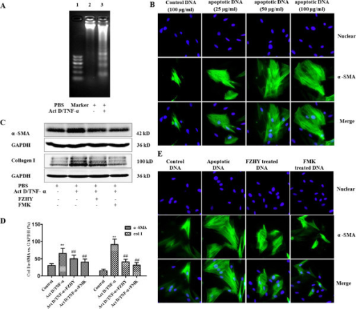 The DNA of Apoptotic hepatocyte up-regulates α-SMA expression in rat HSCs and FZHY inhibited hepatocyte apoptosis and the expressions of α-SMA and type I collagen in HSCs. (A) Fragmented apoptotic DNA in cultured hepatocytes was induced by 200 ng/ml Act D and 20 ng/ml TNF-α. Lane 1, Marker, Lane 2; phosphate-buffered saline (PBS)-treated hepatocytes; Lane 3, Act D/TNF-α treated hepatocytes. (B) Primary hepatocytes were incubated with or without 200 ng/ml ActD and 20 ng/ml TNF-α for 6 h. 100 μg/ml DNA from hepatocytes incubated with PBS acted as a control. 25 ~ 100 μg/ml DNA from apoptotic hepatocyte stimulated α-SMA expression in rat HSCs in a dose dependent manner (Immunofluorescence staining, × 400). (C) Western blot analysis of expressions of α-SMA and type I collagen in rat HSCs. (D) Graphic presentation of the relative expressions of α-SMA and type I collagen. The values were represented as the density of α-SMA and collagen I vs. housekeeping gene GAPDH (%) from 3 samples. (E) Primary hepatocytes were incubated with or without 200 ng/ml ActD and 20 ng/ml TNF-α for 6 h. Then, 100 μg/ml DNA from apoptotic hepatocytes was added into HSCs after culture for 4 days. 100 μg/ml DNA from hepatocytes incubated with PBS acted as a control. The apoptotic DNA from hepatocytes treated by FZHY or Z-VAD-FMK (FMK) had less stimulating effects on α-SMA expression in HSCs (Immunofluorescence staining, × 400). **P < 0.01 vs. Control; ##P < 0.01 vscpc Act D/TNF-α group.