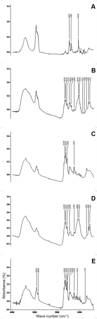 A typical FTIR spectrogram of five gallstone types.A—Pure cholesterol stone and pale areas of mixed cholesterol stone composed of cholesterol (1465, 1381, and 1056 cm-1). B—Pigmented areas of mixed cholesterol stone composed of calcium bilirubinate (1658, 1631, 1573 and 1249 cm-1), calcium carbonate (1462, 871 and 698 cm-1) and calcium phosphate (1026, 606 and 505 cm-1). C—Pigment stone composed of calcium bilirubinate (1658, 1627, 1566 and 1249 cm-1). D—Pigment stone composed of calcium bilirubinate (1658, 1627, 1566 and 1249 cm-1), calcium carbonate (1450, 694 1658, 1627, 1566 and 1249 cm-1) and calcium phosphate (1080, 1033, 609 and 547 cm-1). E—Pigment stone composed of calcium bilirubinate (1666, 1620, 1573 and 1249 cm-1) and calcium palmitate (2916, 2846, 1543, 1103 and 756 cm-1).