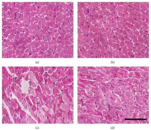 Light micrograph demonstrating the effect of CVB-D on DOX-induced myocardial histological alterations. Representative photomicrographs of mouse heart stained with H&E. (a) Normal saline-treated control; (b) CVB-D pretreated group; (c) DOX-treated group; (d) CVB-D plus DOX-treated group. Arrows indicate areas of histological changes including reduced myofibrils, swelling, vacuolization, and nuclear condensation or dissolution. Scale bar = 20 μm.